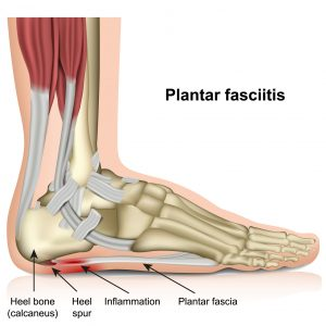 Heel Pain Treatment Council Bluffs Foot Ankle Care Pc Council Bluffs Ia Podiatrist