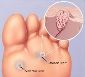 Wart on foot why
